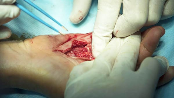 chirurgie de la main chirurgie main paris chirurgie esthetique main dr waitzenegger