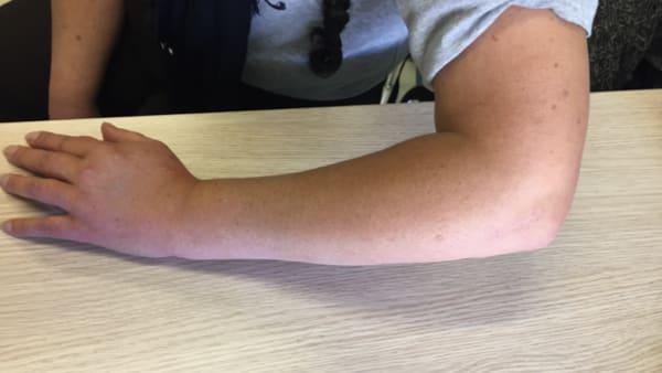 cicatrice apres chirurgie tendinite tendons epicondyliens tennis elbow coude paris docteur thomas waitzenegger chirurgie epaule chirurgie main chirurgie coude paris 16 longjumeau