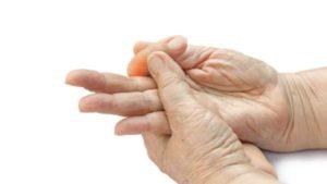 doigt a ressaut chirurgies main main poignet paris docteur thomas waitzenegger chirurgie epaule chirurgie main chirurgie coude paris 16 longjumeau