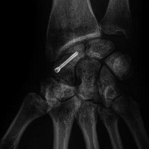 fracture scaphoide vissage urgences main paris docteur thomas waitzenegger chirurgie epaule chirurgie main chirurgie coude paris 16 longjumeau