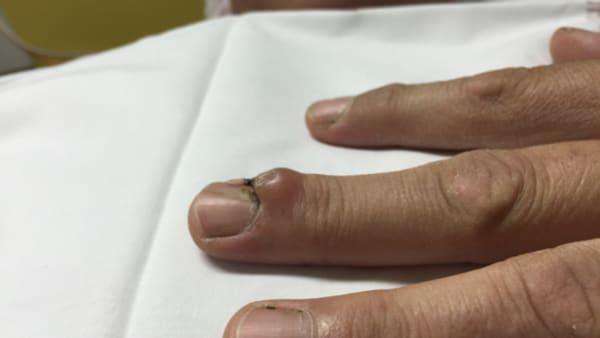 kystes tumeurs doigts chirurgies main main poignet paris docteur thomas waitzenegger chirurgie epaule chirurgie main chirurgie coude paris 16 longjumeau