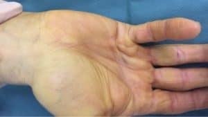 maladie dupuytren chirurgies main main poignet paris docteur thomas waitzenegger chirurgie epaule chirurgie main chirurgie coude paris 16 longjumeau 2
