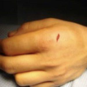 plaies tendons extenseurs urgences main paris docteur thomas waitzenegger chirurgie epaule chirurgie main chirurgie coude paris 16 longjumeau