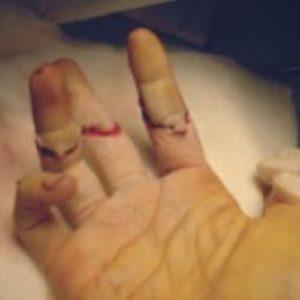 plaies tendons flechisseurs urgences main paris docteur thomas waitzenegger chirurgie epaule chirurgie main chirurgie coude paris 16 longjumeau