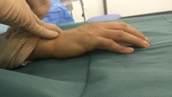 test de la table maladie dupuytren chirurgies main main poignet paris docteur thomas waitzenegger chirurgie epaule chirurgie main chirurgie coude paris 16 longjumeau
